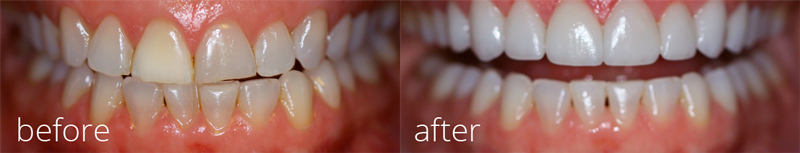 Zoom! Whitening - Before and After