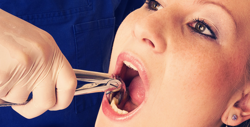 How to Care for Yourself After a Tooth Extraction